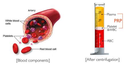 Platelet-rich plasma (PRP) | Dr Habib Ullah